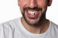 missing tooth barakat ottawa on dentist