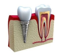 dental implant and crown ottawa, on