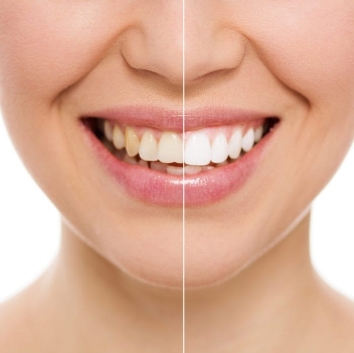 teeth whitening treatment in Stittsville Ontario