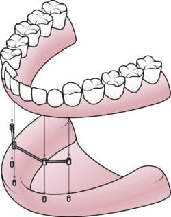 implant-secured dentures in Ottawa Canada