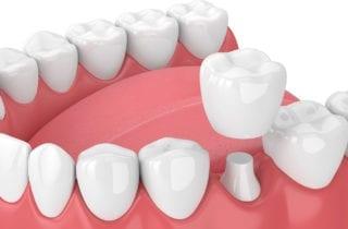 dental crowns stittsville on