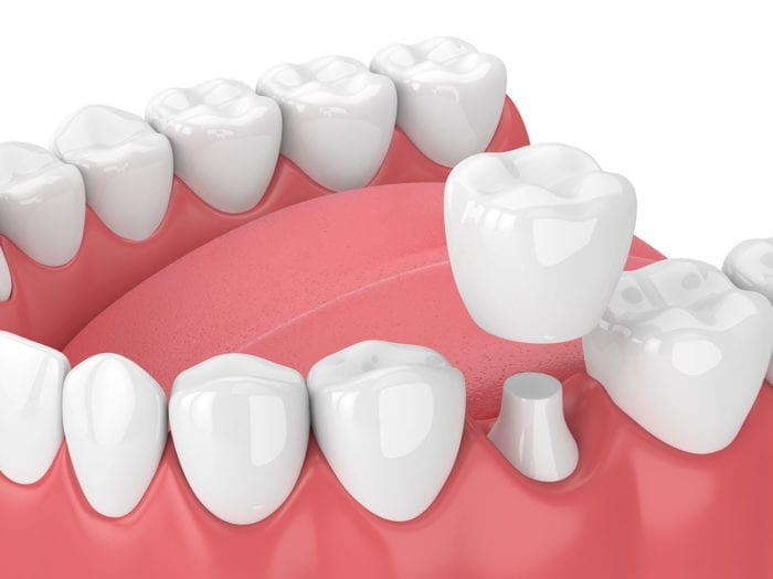 dental crowns stittsville on