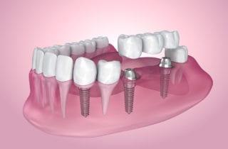 dental implants stittsville on