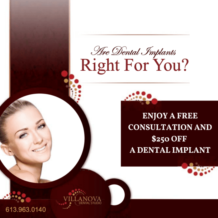 $250 off Dental Implant and free consultation