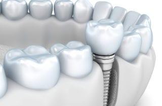 Dental Implants in Kanata ON