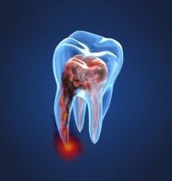 ottawa, ontario dentist