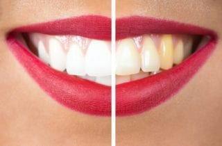 ottawa, ontario cosmetic dentist