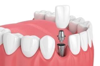 restorative dentist in stittsville, ontario