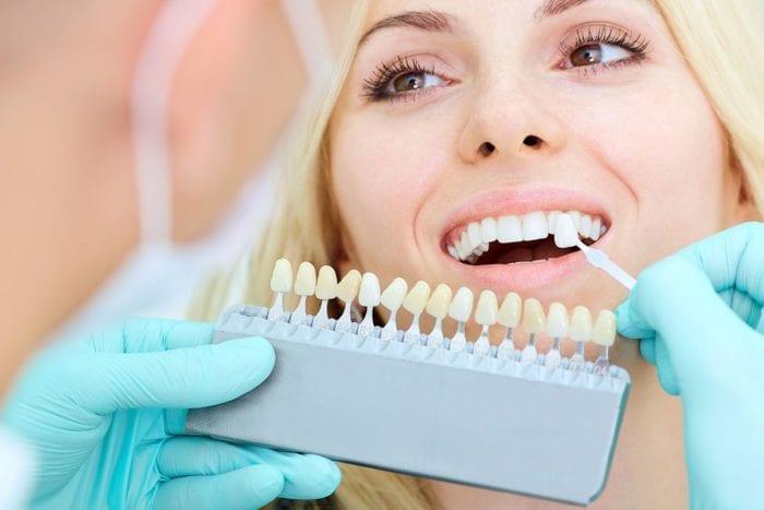 porcelain veneers dentist ottawa on